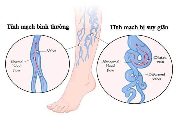Nguyên nhân dẫn đến suy giãn tĩnh mạch chân và cách phòng bệnh ...